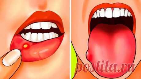 Дефицит фолиевой кислоты. 5 причин и 12 симптомов! | Тысяча и одна идея Вы часто чувствуете усталость или страдаете от язвенной болезни? Вы, вероятно, страдаете от дефицита фолиевой кислоты… Фолиевая кислота:витамин B9 является водорастворимым витамином, то есть не храниться в организме. В результате есть постоянная потребность в источниках питания, богатых этим веществом.