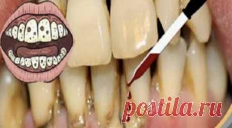 НЕ ЛОЖИТЕСЬ СПАТЬ, НЕ СДЕЛАВ ЭТО: ТРИ КАПЛИ ЭТОГО СРЕДСТВА ИЗБАВЛЯЮТ ОТ КАРИЕСА И ЗУБНОГО КАМНЯ. Легко и просто!      Я думаю, мы все знаем, что чистка зубов является фундаментальной частью нашего дня. Наши зубы чрезвычайно важны. Вот почему мы должны давать им надлежащее обслуживание и быть в состоянии наслажда…