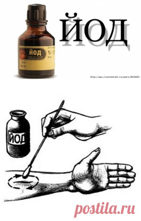 Йодные кольца: простой метод, нормализующий давление