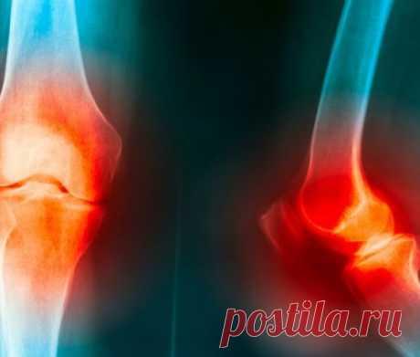 Лечение артроза локтевого сустава: причины, симптомы, лечение   .Анатомически локтевой сустав состоит из комбинации лучевой, плечевой и локтевой костей. Через него пролегают важные нервы, которые часто придавливаются при патологических ситуациях и вызывают серьезные заболевания. И одним из таких заболеваний явля...