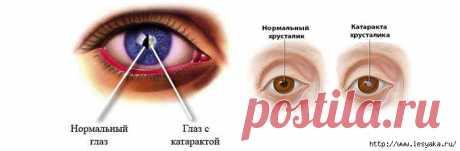 Причины и профилактика катаракты