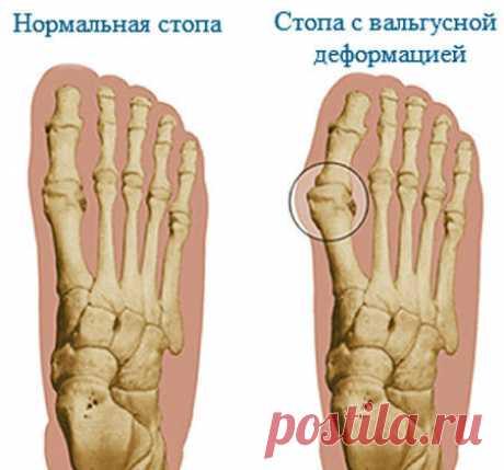 «Вальгусная стопа: что это такое, ее лечение и профилактика  Вальгусная стопа у детей и ее признаки. Диагностика, консервативное лечение. Как выбрать ортопедическую обувь для ребенка. Как самостоятельно выполнить массаж ребенку при вальгусной деформации. Если ребенок не по возрасту неуверенно переставляет ножки при ходьбе, это должно насторожить родителей: возможно, у него формируется вальгус, а если это сочетается с плоскостопием, то называется пл...