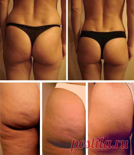 рисунок до и после похудения