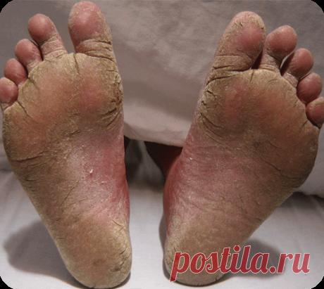 Гомеопатическое средство от грибка ногтей  Лечение грибка ногтей на ногах Лечить грибок ногтей на ногах необходимо сразу после обнаружения. Чем дольше протекает заболевание, тем труднее с … Гомеопатическое лечение грибка ногтей проводиться с помощью подбора ряда препаратов. Для того, что было понятно, что это за препараты