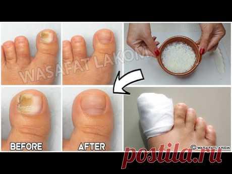 Вы страдаете грибком ногтей? Вы должны это сделать !!!! *** ОЧЕНЬ ВАЖНЫЙ СОВЕТ ***