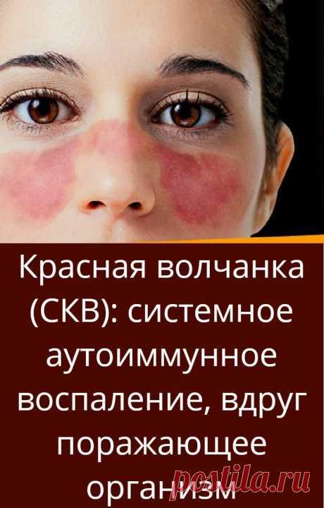 Красная волчанка (СКВ): системное аутоиммунное воспаление, вдруг поражающее организм