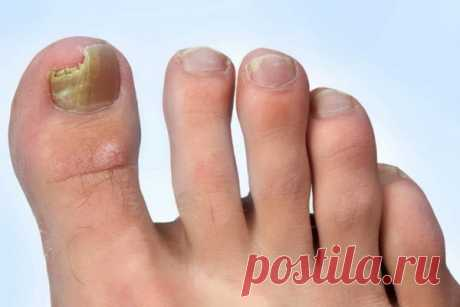 Нашатырный спирт от грибка ногтей на ногах | Ноги Наши | Яндекс Дзен