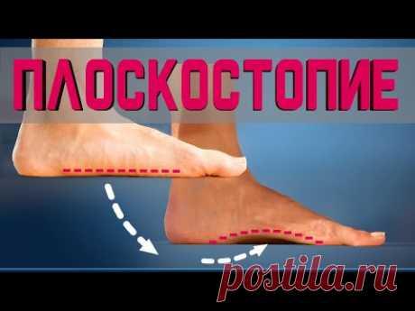5 простых упражнений от Плоскостопия на каждый день!