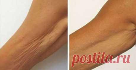 Потерявшая упругость, обвисшая кожа на руках, шее, животе и бедрах — нередкое явление у женщин после 45 лет. Увлечение диетами, резкое похудение, гормональные сбои — всё это сказывается на состоянии кожи, ведь с возрастом клетки уже не способны так быстро восстанавливаться, как прежде. Тем не менее