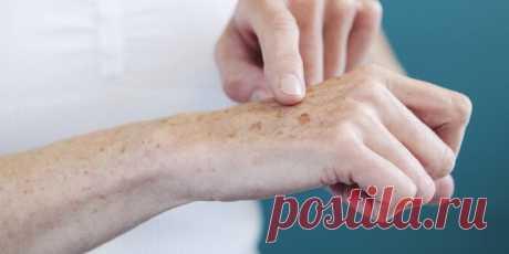Почему появляются возрастные пятна и как избавиться С годами на лице, руках, спине, плечах обнаруживается подозрительная пигментация. Важно понимать, почему появляются возрастные пятна и как их отличить от меланомы.