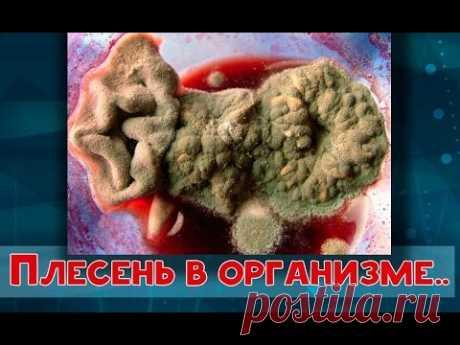 ПЛЕСЕНЬ в организме и СОДА-  Огулов А.Т.