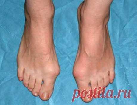 8 народных рецептов от шишек на ногах «Шишки» на ногах проявляются в виде деформации вследствие отклонения первого пальца стопы. Чем больше первый палец отклоняется в сторону малых, тем деформация становится сильнее, а «шишки» становятся …