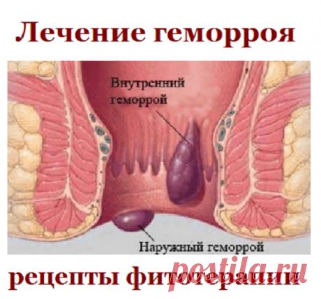 Лечение геморроя, рецепты фитотерапии | Советы целительницы