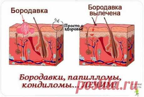 бородавки на анусе лечениеЭтиология бородавок на заднем проходе. Виды наростов и симптомы болезни. Способы лечения бородавок на анальности, методы радикального удаления, рецепты народной медицины.