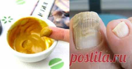 Как быстро и просто можно вылечить микоз ногтей?