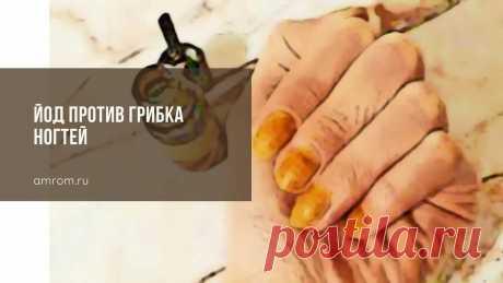 Йод против грибка ногтей | Журнал Амром Йод против грибка ногтей. С грибковой инфекцией на ногтях сталкиваются многие. В медицине это неприятное явление называется онихомикозом или микозом ногтя.
