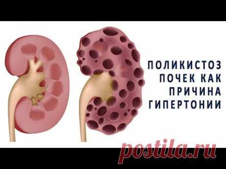 Поликистоз почек как одна из причин гипертонии