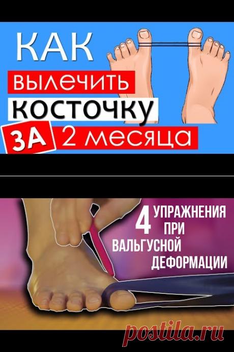 Как избавиться от вальгусной косточки без операции - YouTube