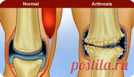 Компрессы при артрозе колена Рецепты » Счастье Здоровья Область колена считается одной из наиболее уязвимой областью организма человека, так как именно на нее приходится основная нагрузка в течение всей жизни.