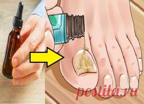 ТОП-7 как быстро вылечить ногтевой грибок — ДОМАШНИЕ