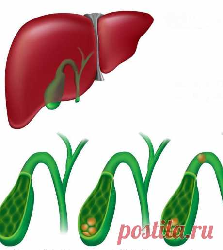Симптомы наличия камней в печени и желчном пузыре, которые проявляются