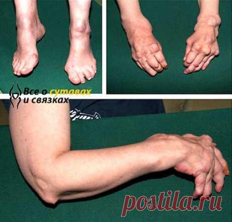 Ревматоидный полиартрит: лечение, симптомы и причины