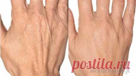 Супер-мазь для рук! Невероятный эффект! Супер-мазь для рук! Невероятный эффект! Убирает морщины, пигментные пятна и трещины на руках. Эффект замечательный: кожа рук становится мягкой, эластичной и трещины проходят буквально за 3-4 дня!Снач...