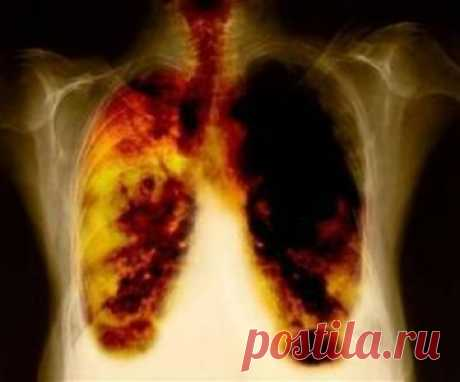 How to clear lungs after smoking?
