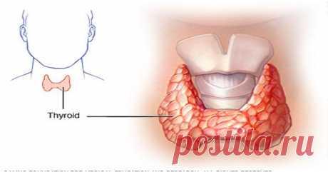 Как вылечить щитовидную железу? Лучшие травы для улучшения состояния щитовидной железы и ее лечения.
