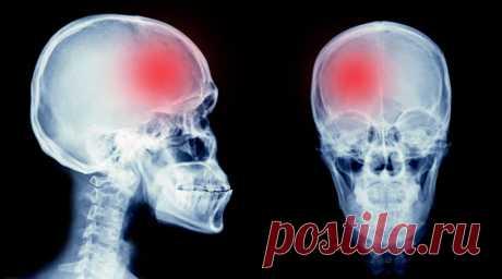 Катастрофа в голове: почему происходят инсульты и как их избежать - The-Challenger.ru