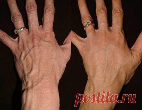 Невероятно быстрое омоложение кожи рук — Полезные советы