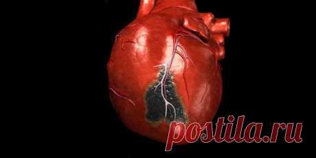 8 признаков инфаркта миокарда, при которых нужно звонить в скорую - ПолонСил.ру - социальная сеть здоровья - медиаплатформа МирТесен