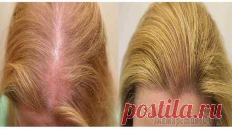 Лучшее средство от выпадения волос Проблема выпадения волос касается многих людей в разном возрасте. Это может быть из-за стрессов, нехватка витаминов, беременность, травмирование волосяных луковиц и т.д. Я покажу вам рецепт, как приго...