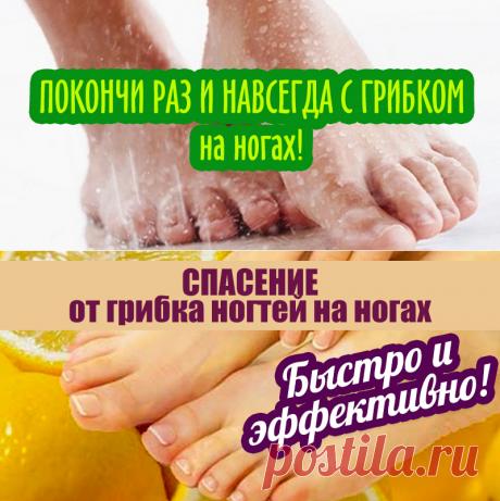 ПОКОНЧИ РАЗ И НАВСЕГДА С ГРИБКОМ на ногах! | Полезные советы