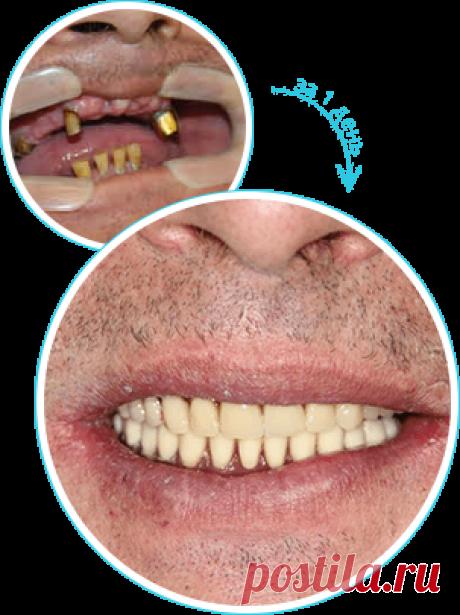 Имплантация и протезирование зубов по технологии ALL-On-4 / All-ON-6 - Зубы за 1 день