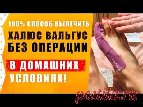 Халюс Вальгус – Лечение без операции в домашних условиях ! Подагра.
