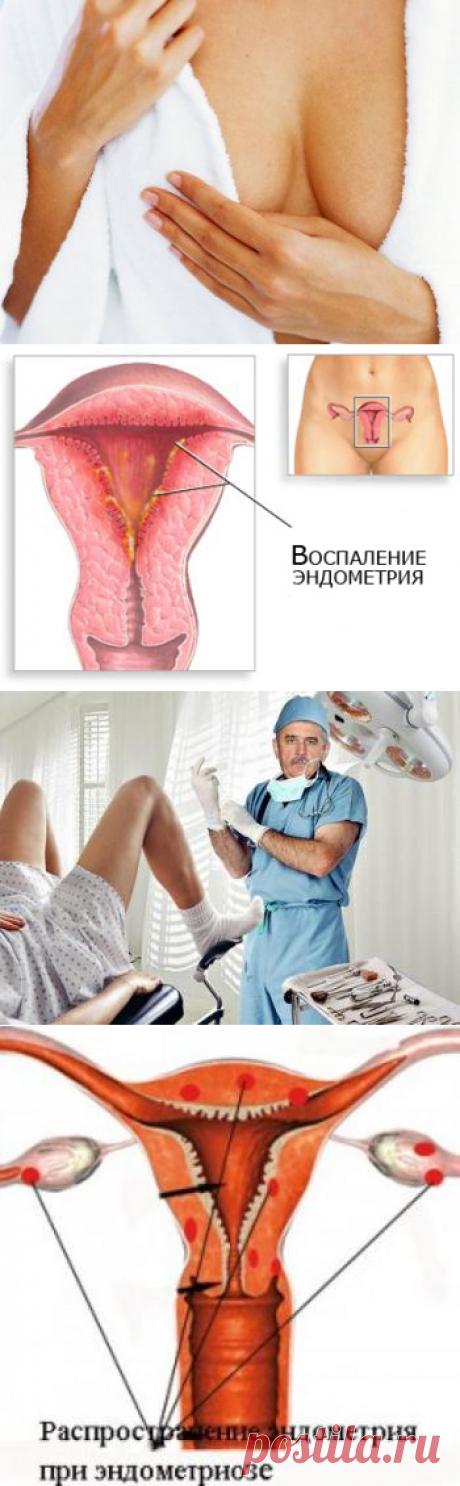 Лечение эндометриоза матки народными средствами