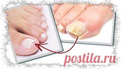 Грибок ногтей на ногах, фото как выглядит, стадии  Грибок ногтей при заражении дерматофитами. В 95% всех случаев грибка ногтей ... На фото грибок ногтя выглядит, как полосы желтоватого цвета, направленные к ... После чего постепенно продвигается по ногтю от основания к краю, захватывая все большую площадь ногтевой пластины. Возбудителем болезни при.