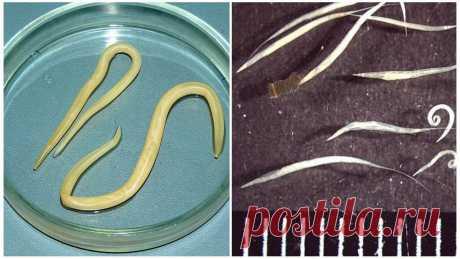 «Фото распространенных и редких паразитов, обитающих в организме человека, особенности строения глистов и простейших, симптоматика и признаки заражения, основы лечения.