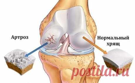 Здоровые суставы: Боль отпускает за 2-3 дня: Почему хирурги не говорят правду? | Ver-A | Яндекс Дзен