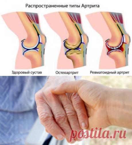 ревматоидный артрит - Самое интересное в блогах