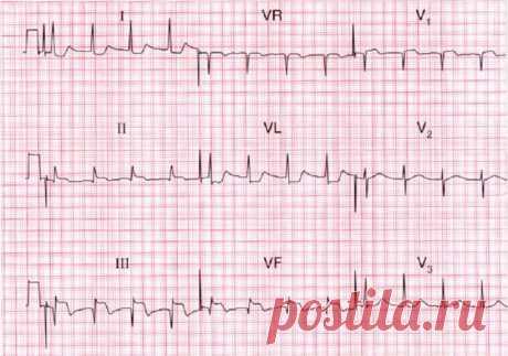 Признаки инфаркта миокарда по ЭКГ сердца - ОБЖ