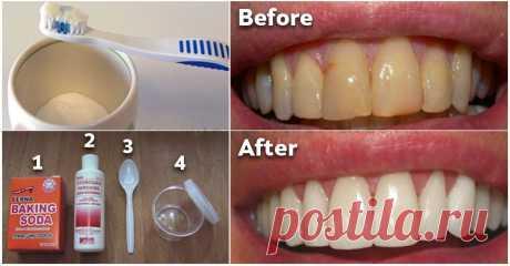 Как избавиться от зубного налета и отбеливать зубы без дорогостоящих процедур