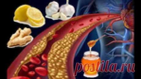 Старый рецепт для очистки сосудов от холестериновых бляшек