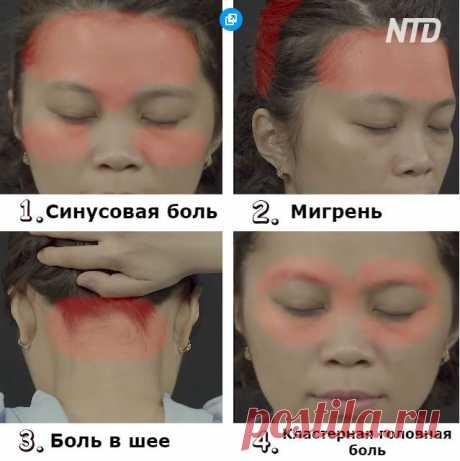 Китайцы считают, что есть 4 вида головной боли. Вот как избавиться от каждой из них  Этому методу - тысячи лет. Вы страдаете от серьезных или частых головных болей, но не признаете таблетки? Если так, то эта инструкция с использованием точек акупунктуры для облегчения боли станет для…