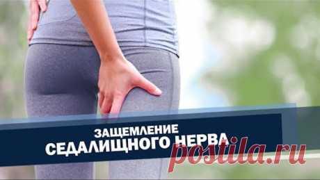 Седалищный нерв. Облегчение боли. Упражнения. | Доктор Демченко