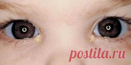 Повышенное слезотечение глаз: Причины и лечение проблемы   Будем здоровы   Яндекс Дзен