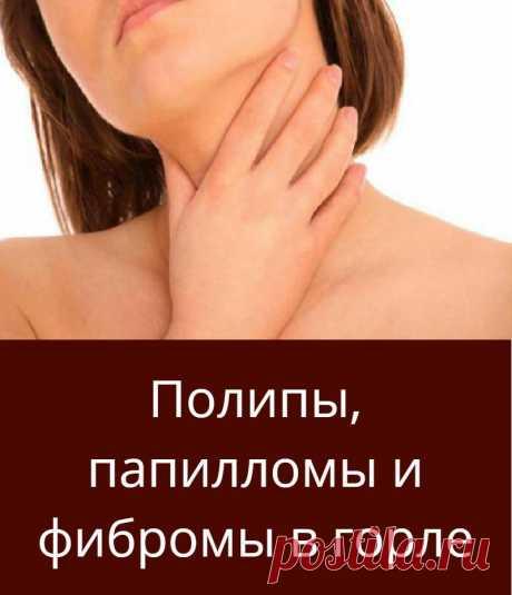 Полипы, папилломы и фибромы в горле
