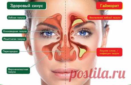 Избавься от инфекции носовых пазух всего за 5 минут! Знать бы этот метод раньше… — Копилочка полезных советов