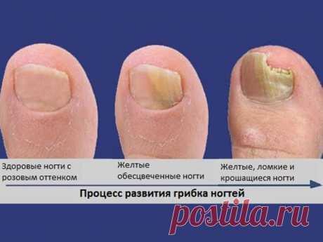 Как грибок ногтей влияет на организм - О грибке ногтей 2.1 Как грибок влияет на организм. 2.2 Где можно встретить грибок и пути заражения. 2.3 Когда заражение переходит в заболевание. ... Чем может быть опасен грибок ногтей на ногах. Как он влияет на наше здоровье, и качество жизни в целом. Что будет, если его игнорировать, об этом всем здесь и сейчас